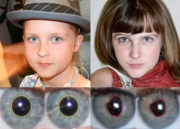 Gerçek yüz ve göz bebeklerinin (solda) yapay olanlarla (sağda) karşılaştırmasını içeren göz anatomisinin bir dökümü